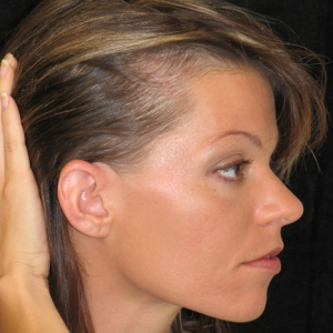do you want to vanquish hair loss such as alopecia